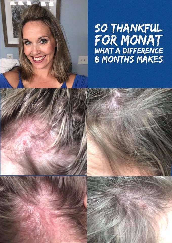 Monat Hair Care Review And Story Productive Mama